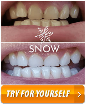 Snow Teeth Whitening System Save 50 On Your Whole Kit Review